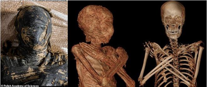 Phát hiện chấn động: Xác ướp Ai Cập cổ đại đầu tiên trên thế giới có bào thai trong bụng - Điều khiến chuyên gia kinh ngạc là gì? - Ảnh 1.