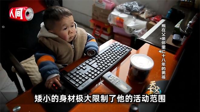 Cậu bé mắc bệnh lạ chỉ cao 68cm do ngừng phát triển từ năm 1 tuổi gây xúc động với cuộc sống và diện mạo hiện tại sau hơn 30 năm  - Ảnh 2.