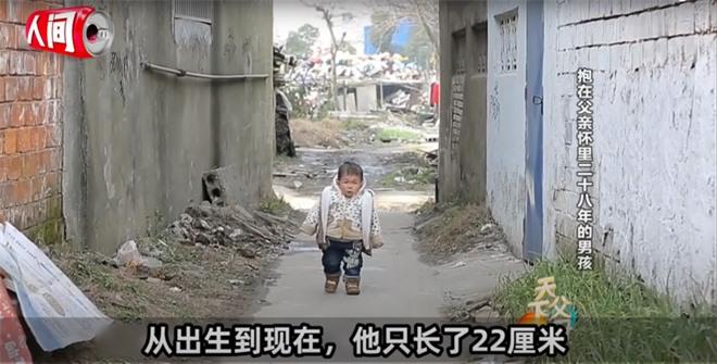 Cậu bé mắc bệnh lạ chỉ cao 68cm do ngừng phát triển từ năm 1 tuổi gây xúc động với cuộc sống và diện mạo hiện tại sau hơn 30 năm  - Ảnh 6.