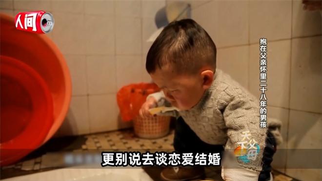 Cậu bé mắc bệnh lạ chỉ cao 68cm do ngừng phát triển từ năm 1 tuổi gây xúc động với cuộc sống và diện mạo hiện tại sau hơn 30 năm  - Ảnh 7.