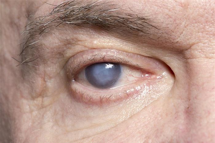 Tình trạng mắt nhức mỏi và mờ: Không nên chủ quan! - Ảnh 3.