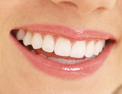 4 lời khuyên giúp răng nướu khỏe mạnh