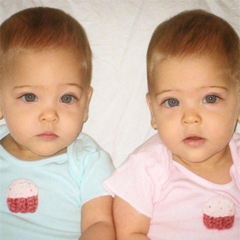 """2 chị em từng được mệnh danh là """"cặp song sinh xinh đẹp nhất thế giới"""", được săn đón khi mới 6 tháng tuổi bây giờ ra sao? - Ảnh 1."""
