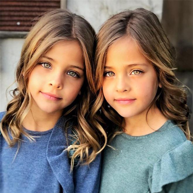 """2 chị em từng được mệnh danh là """"cặp song sinh xinh đẹp nhất thế giới"""", được săn đón khi mới 6 tháng tuổi bây giờ ra sao? - Ảnh 2."""