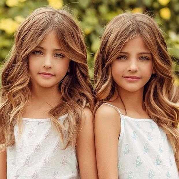 """2 chị em từng được mệnh danh là """"cặp song sinh xinh đẹp nhất thế giới"""", được săn đón khi mới 6 tháng tuổi bây giờ ra sao? - Ảnh 3."""