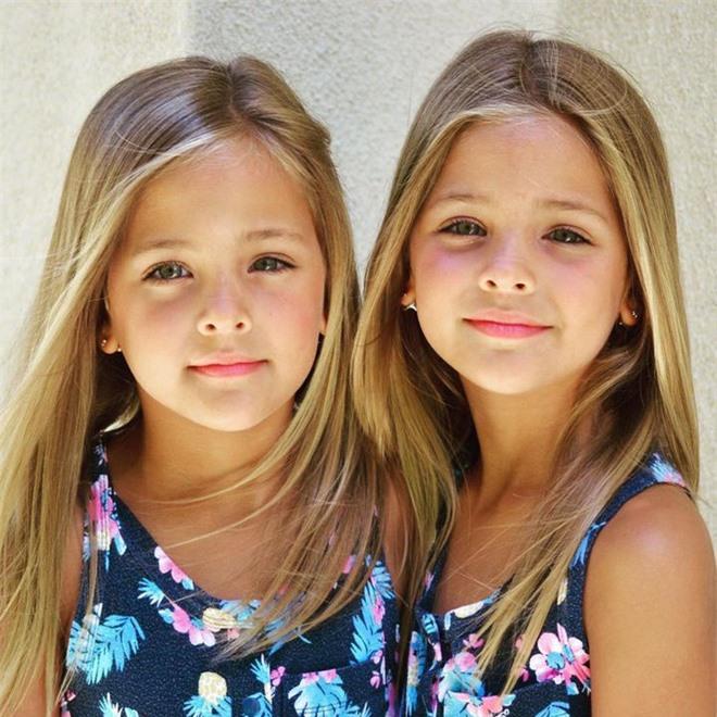 """2 chị em từng được mệnh danh là """"cặp song sinh xinh đẹp nhất thế giới"""", được săn đón khi mới 6 tháng tuổi bây giờ ra sao? - Ảnh 6."""