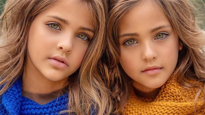 """2 chị em từng được mệnh danh là """"cặp song sinh xinh đẹp nhất thế giới"""", được săn đón khi mới 6 tháng tuổi bây giờ ra sao? - Ảnh 7."""