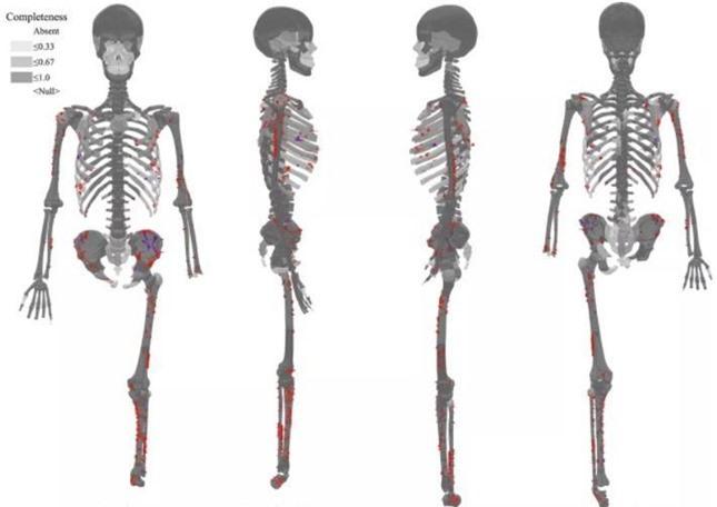 Giải mã bí ẩn bộ xương người tiền sử cụt chân: Cái chết rùng rợn, đau đớn, kinh hoàng ảnh 1