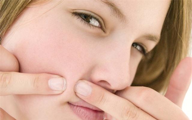 Vị trí mụn mọc trên mặt nói gì về tình trạng sức khỏe