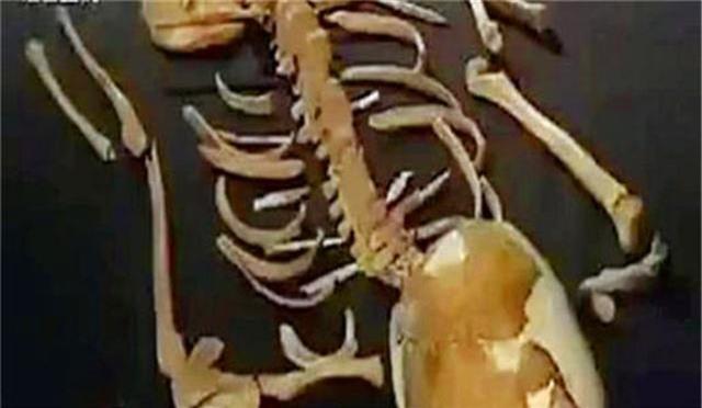 Kiểm tra thi thể chủ nhân ngôi mộ 7.000 tuổi, đội khảo cổ rùng mình: Sao lại thừa 18 cái xương? - Ảnh 1.