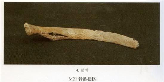 Kiểm tra thi thể chủ nhân ngôi mộ 7.000 tuổi, đội khảo cổ rùng mình: Sao lại thừa 18 cái xương? - Ảnh 2.