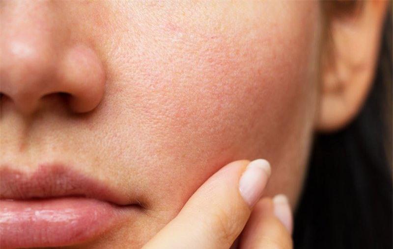 6 dấu hiệu cảnh báo cơ thể đang thiếu canxi