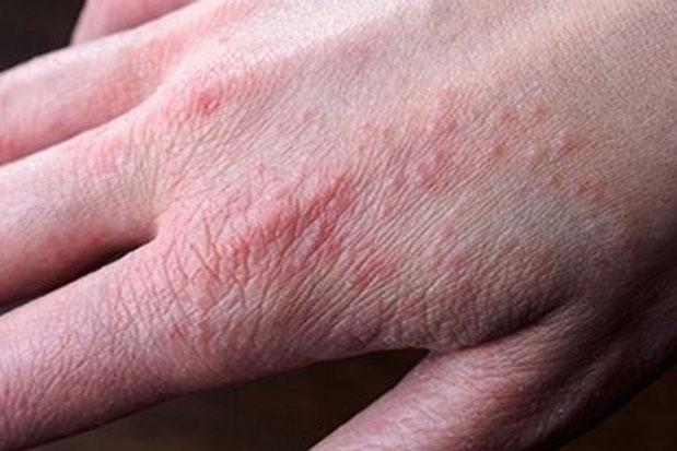 Dấu hiệu nào trên bàn tay cho thấy lượng đường huyết tăng cao vượt mức?