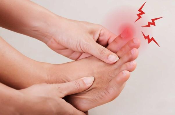 Bệnh gút gây viêm, đau dữ dội các khớp.