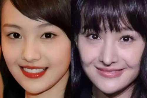 Những mỹ nhân châu Á thẩm mỹ hỏng: Trịnh Sảng mũi lệch, Cúc Tịnh Y gây hoảng với sống mũi trong suốt