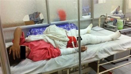 Nạn nhân đang điều trị tại khoa bỏng tạo hình, Bệnh viện Chợ Rẫy TPHCM. Ảnh: Quốc Ngọc/Tiền Phong