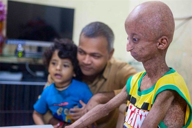 Dù mới 14 tuổi nhưng Nihal hiện có thân hình của một cụ ông với da nhăn nheo, đầu trọc và chân tay teo tóp.