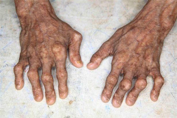 Bàn tay của Nihal teo tóp, gầy guộc do chứng hành hạ.